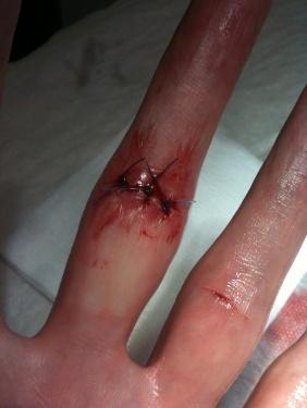 fingerkaputt